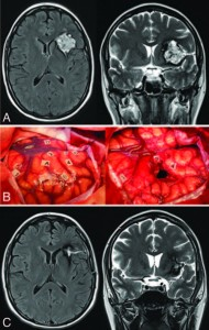 Awake mapping for resection of cavernous angioma and surrounding gliosis in the left dominant hemisphere