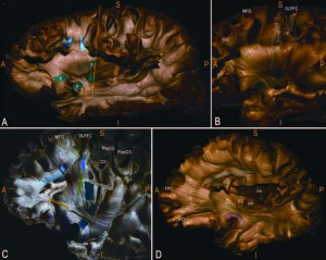 Subcortical surgical anatomy of the lateral frontal region