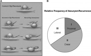Patterns of Aneurysm Recurrence After Microsurgical Clip Obliteration