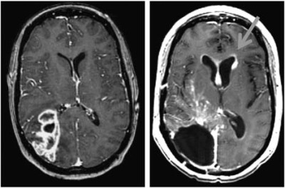 Relationship of glioblastoma multiforme to the subventricular zone is associated with survival
