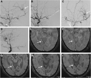 The Use of Susceptibility-Weighted Imaging as an Indicator of Retrograde Leptomeningeal Venous Drainage and Venous Congestion With Dural Arteriovenous Fistula