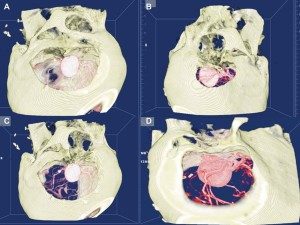 Virtual planning of different possible approaches for the surgical treatment of a giant carotid-ophthalmic aneurysm