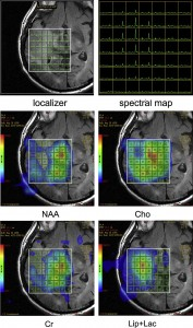Glioma grading by MR spectroscopy