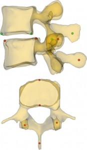 Motion characteristics of the vertebral segments with lumbar degenerative spondylolisthesis in elderly patients
