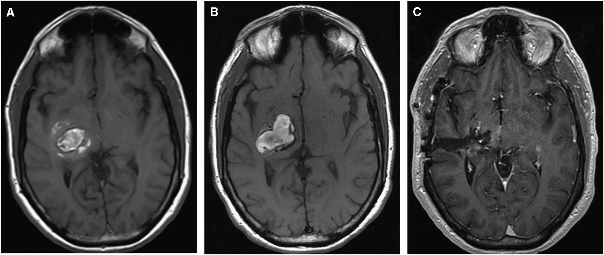 What is cerebral cavernous malformation?