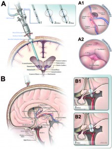 endoscopic third ventriculostomy