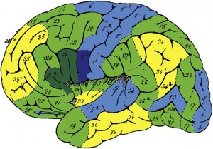 Aphasia induced by gliomas