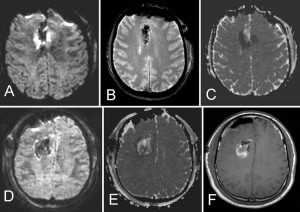 Postoperative ischemic changes following resection of newly diagnosed and recurrent gliomas and their clinical relevance