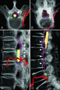 Three-dimensional angioarchitecture of spinal dural arteriovenous fistulas, with special reference to the intradural retrograde venous drainage system