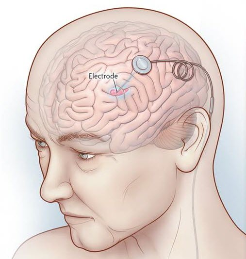 deep brain stimulation Like a pacemaker for the brain, deep brain stimulation (dbs) controls electrical  signals in the brain to help control abnormal movements such as tremors and.