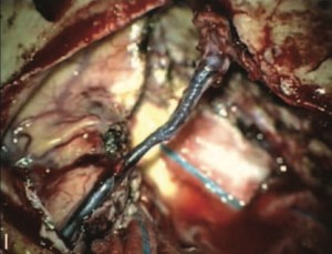 Venous preservation–guided resection- a changing paradigm in parasagittal meningioma surgery-1