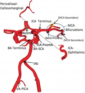 ANEURYSM SUSCEPTIBILITY AND HEMODYNAMIC STRESS