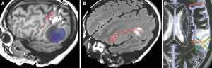 Deformable Anatomic Templates Improve Analysis of Gliomas With Minimal Mass Effect in Eloquent Areas
