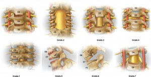 Standardized nomenclature cervical osteotomies