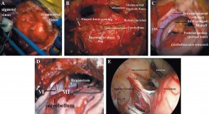 Transmastoid Retrosigmoid Approach