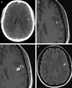 Magnetic Resonance Evolution of De Novo Formation of a Cavernoma in a Thrombosed Developmental Venous Anomaly