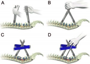 Sagittal plane correction in pedicle subtraction osteotomy