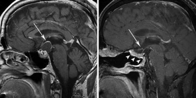 Endoscopic endonasal surgery for craniopharyngiomas