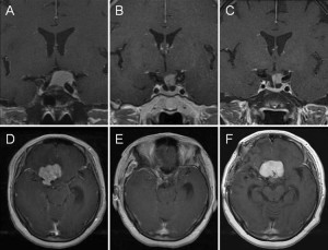 Effect of dural detachment on long-term tumor control for meningiomas treated using Simpson Grade IV resection