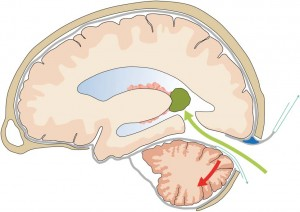 Keyhole Supracerebellar Transtentorial Transcollateral Sulcus Approach to the Lateral Ventricle