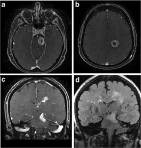 Management and outcome of high-grade multicentric gliomas