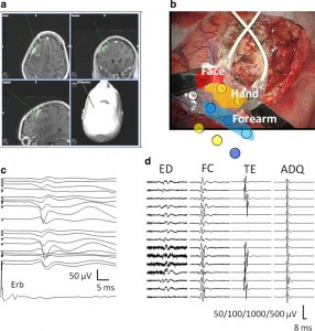 Role of intraoperative neurophysiological monitoring during fluorescence-guided resection surgery