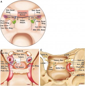 The_Recesses_of_the_Sellar_Wall_of_the_Sphenoid