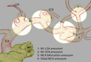 Focused opening of the sylvian fissure for microsurgical management of MCA aneurysms