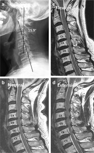 Cervical extension magnetic resonance imaging in evaluating
