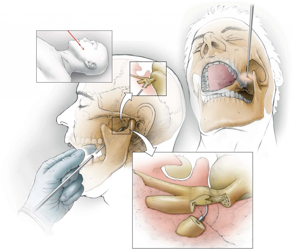 A Review of Percutaneous Treatments for Trigeminal Neuralgia