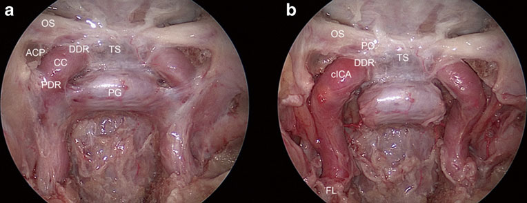 Identification of the internal carotid artery in cavernous sinus during endoscopic endonasal cavernous sinus tumor surgery
