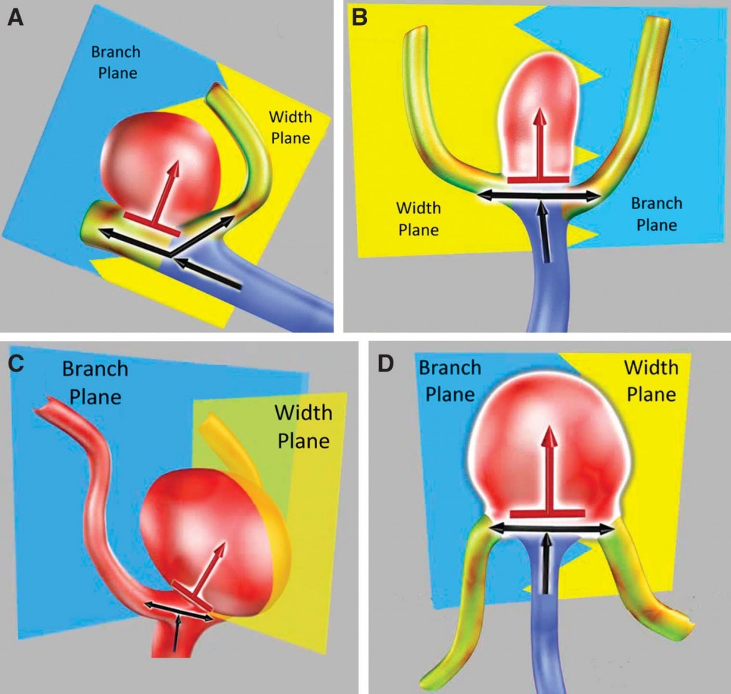 Middle Cerebral Artery Bifurcation Aneurysms- An Anatomic Classification Scheme for Planning Optimal Surgical Strategies