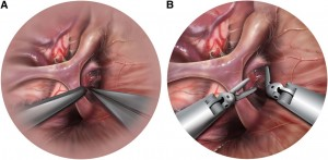 Robotics in Keyhole Transcranial Endoscope-Assisted Microsurgery