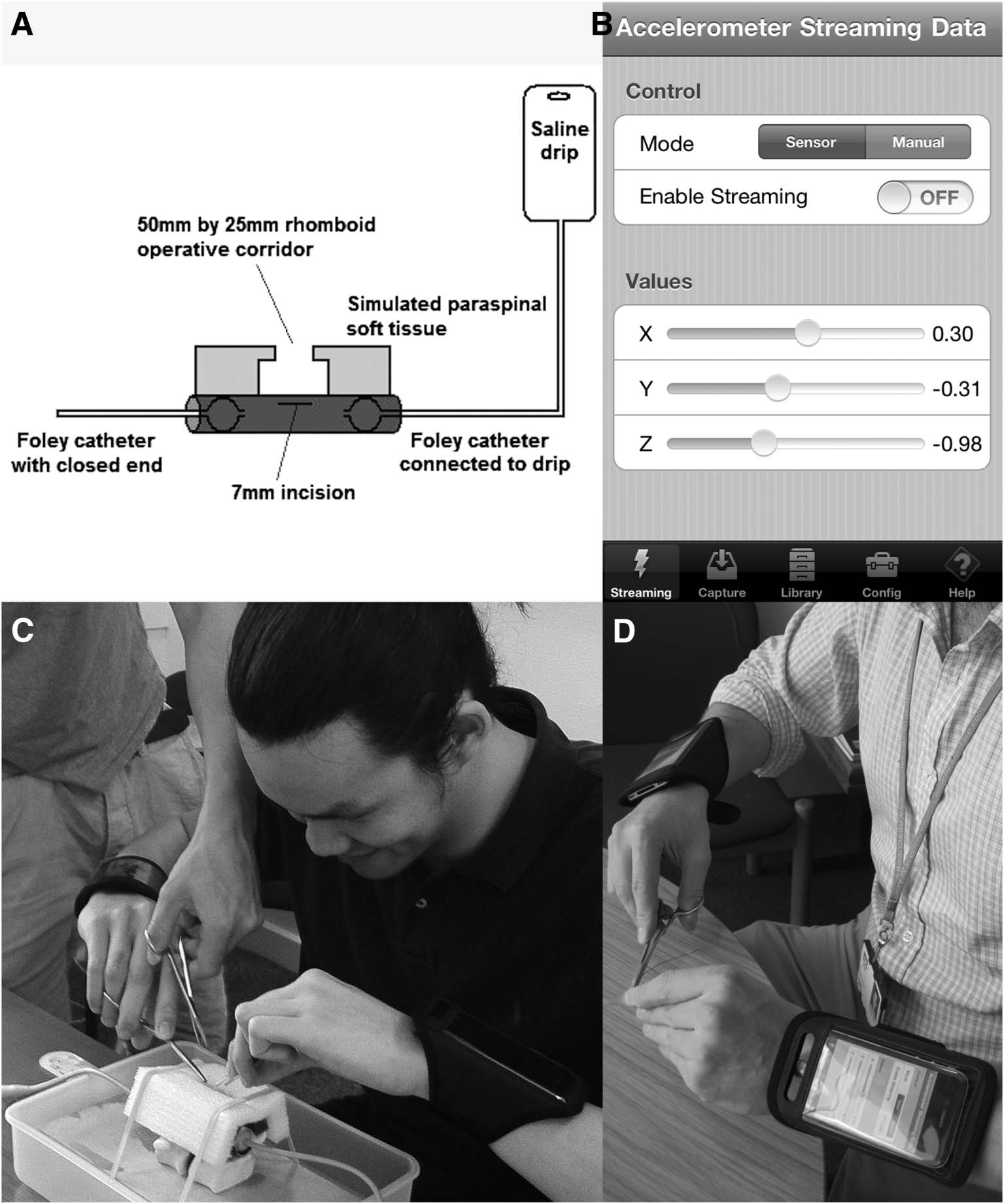 Validating the Use of Smartphone-Based Accelerometers for Performance Assessment in a Simulated Neurosurgical Task