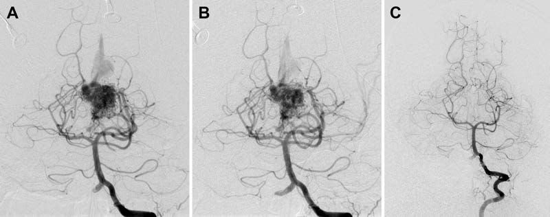 Multimodality management of Spetzler-Martin Grade III arteriovenous malformations