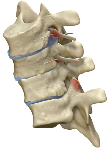 Minimally invasive spine surgery for adult degenerative lumbar scoliosis