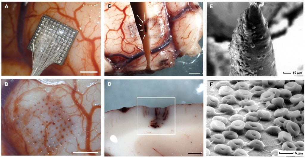 Acute human brain responses to intracortical microelectrode arrays- challenges and future prospects