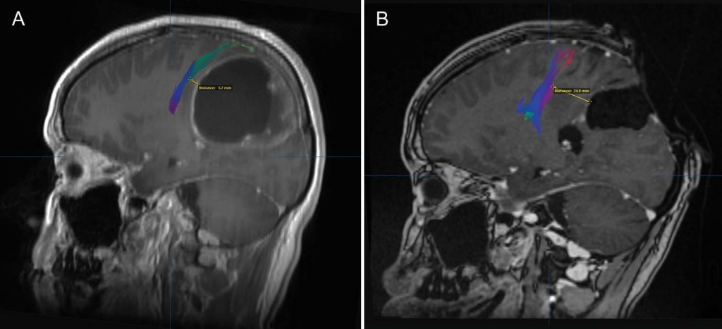 Preoperative Imaging to Predict Intraoperative Changes in Tumor-to-Corticospinal Tract Distance