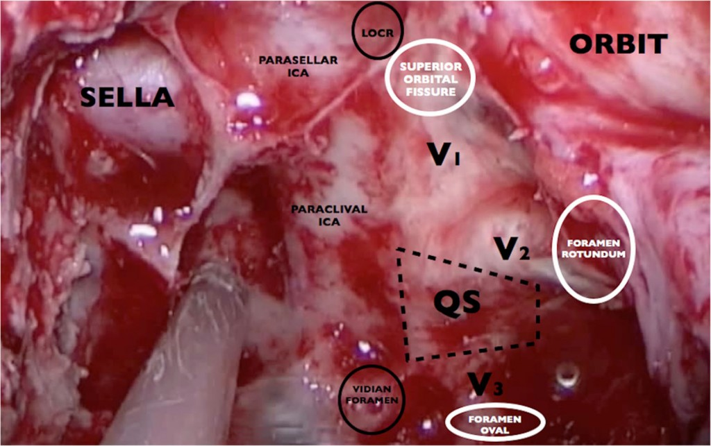 Full endoscopic endonasal suprapetrous approach to Meckel's cave