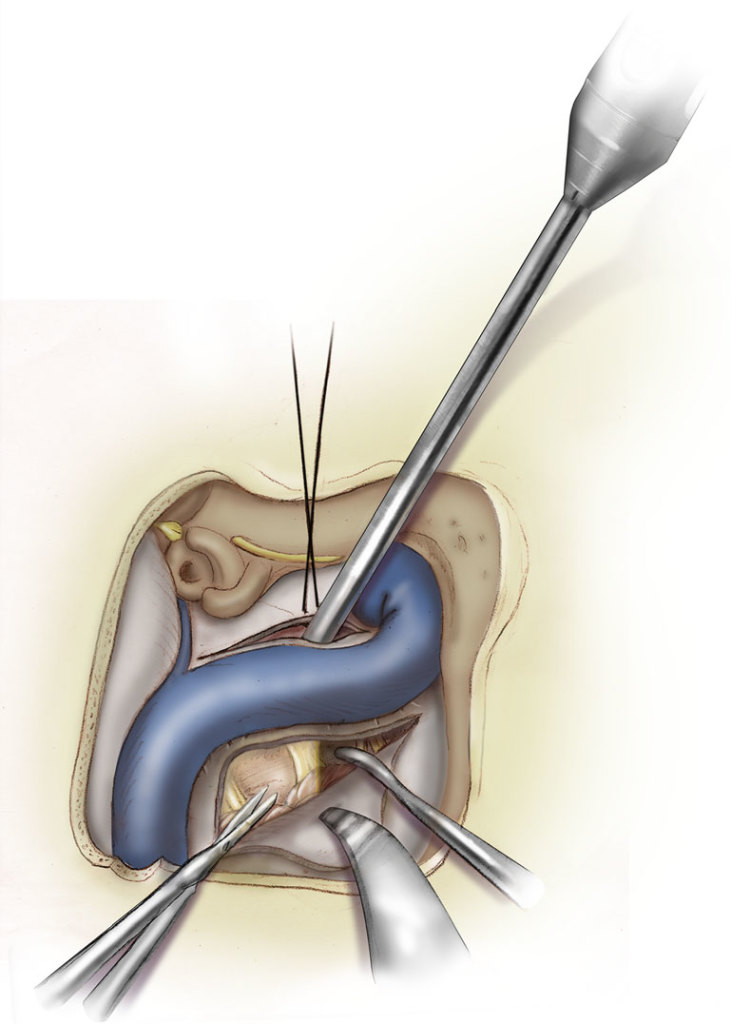A combined dual-port endoscope-assisted pre- and retrosigmoid approach to the cerebellopontine angle- an extensive anatomo-surgical study