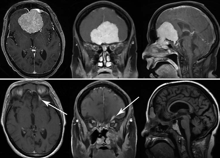 Endoscopic endonasal surgery for olfactory groove meningiomas- outcomes and limitations in 50 patients