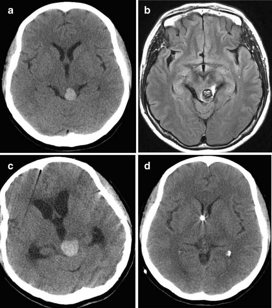 Gamma knife radiosurgery for brainstem cavernous malformations- should a patient wait for the rebleed?