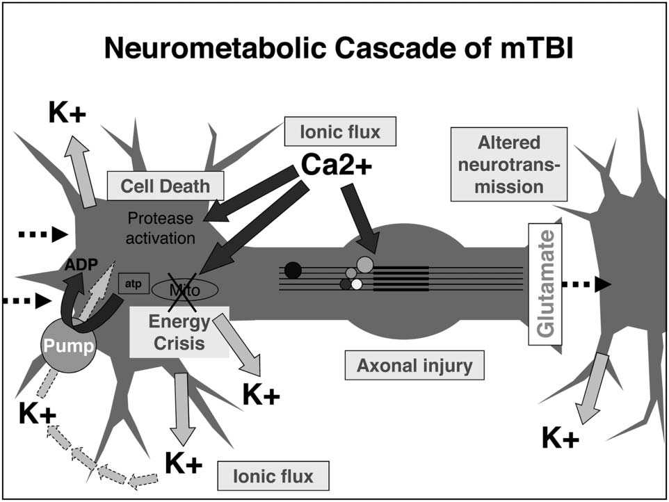 The New Neurometabolic Cascade of Concussion