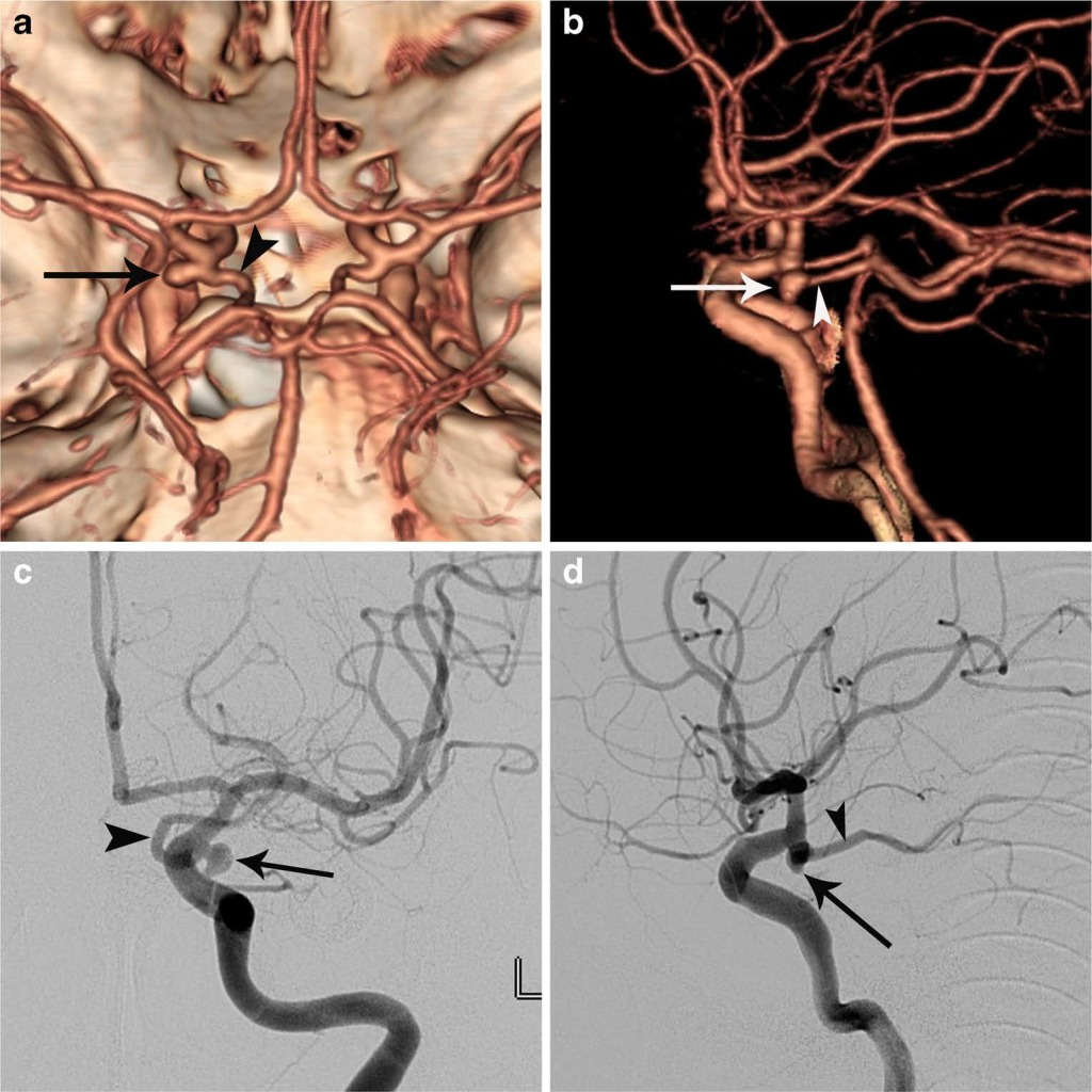 Infundibular dilation and aneurysm at the origin of the posterior communicating artery- differential diagnosis by CT angiography
