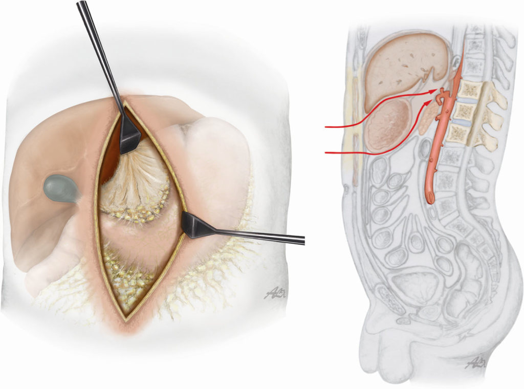 The direct anterior approach to the thoracolumbar junction