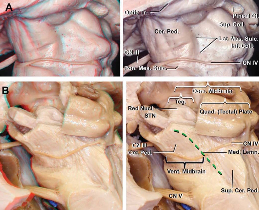 Three-Dimensional Microsurgical Anatomy and the Safe Entry Zones of the Brainstem