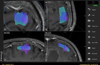 Brain surface reformatted imaging (BSRI) for intraoperative neuronavigation in brain tumor surgery
