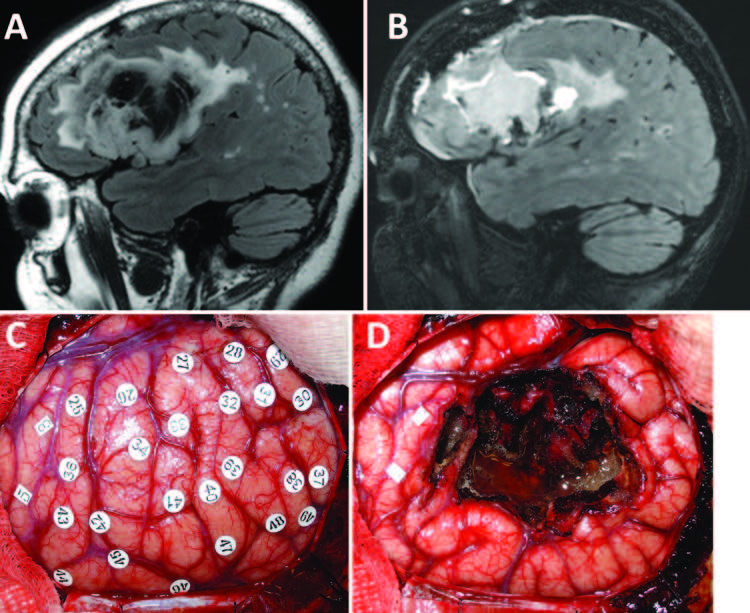 Frontal operculum gliomas- language outcome following resection