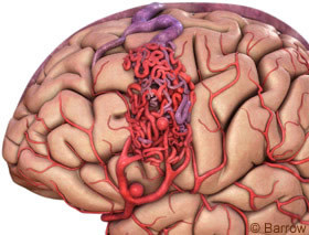 Low-grade brain arteriovenous malformations