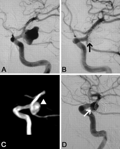 Recanalization for Patients With Endovascular Treatment of Intracranial Aneurysms